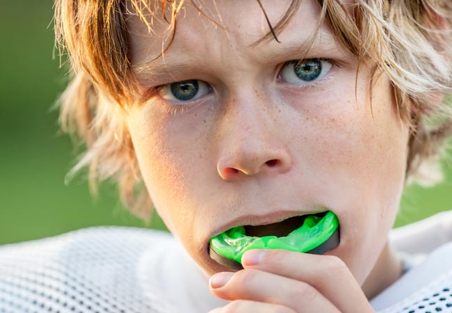 Sports Mouth Guard Dentist Holland MI